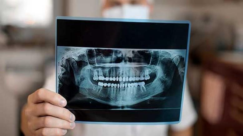 Baş ağrısı, Diş Hastalıklarının habercisi olabilir