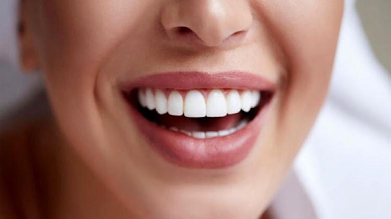 Çinli araştırmacılar, diş minesine zarar vermeyen beyazlatma yöntemi geliştirdi